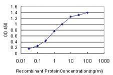 Anti-NVL Mouse Monoclonal Antibody