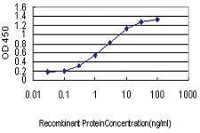 Anti-PAFAH1B1 Mouse Monoclonal Antibody