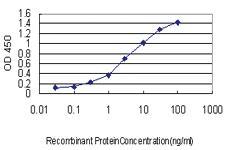 Anti-PDE3A Mouse Monoclonal Antibody