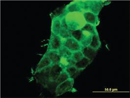 Anti-PDLIM5 Mouse Monoclonal Antibody