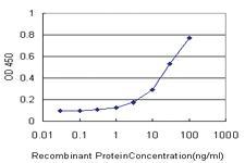 Anti-TMEM115 Mouse Monoclonal Antibody