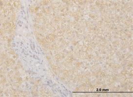 Anti-POMGNT1 Mouse Monoclonal Antibody