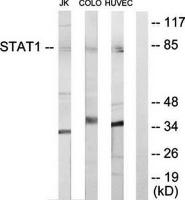 Western blot analysis of extracts from Jurkat cells, COLO205 cells and HUVEC cells using STAT1 antibody