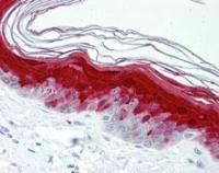 Immunohistochemical staining of paraffin embedded human skin tissue using Psoriasin antibody (primary antibody at 1:200)