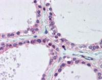 Immunohistochemical staining of paraffin embedded human thyroid tissue using UEV1 antibody (primary antibody at 1:200)