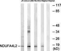 Western blot analysis of extracts from Jurkat cells, COLO cells, HUVEC cells and HepG2 cells using NDUFA4L2 antibody