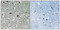 Immunohistochemical analysis of formalin-fixed and paraffin-embedded human brain tissue using PIGH antibody