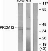 Western blot analysis of extracts from HUVEC cells and A549 cells using PRDM12 antibody