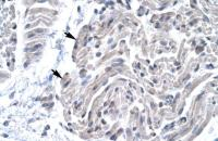 Antibody used in IHC on Human Muscle.
