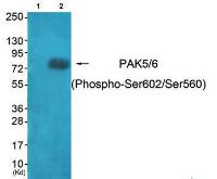 Western blot analysis of extracts from HeLa cells using PAK5-6 (phospho-Ser602-Ser560) antibody