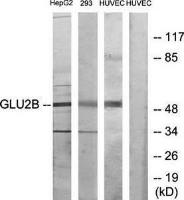 Western blot analysis of extracts from mouse brain cells using GLU2B antibody